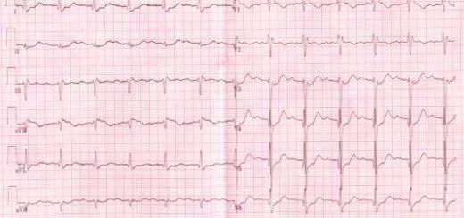 лечение АВ блокады установкой кардиостимулятора