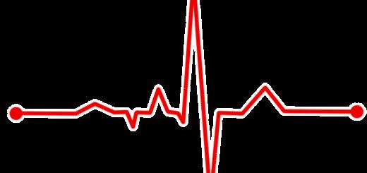 Симптомы и признаки AV блокад