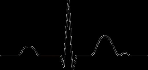 AV блокады II и III степени